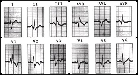 ECG_electrocardiografia_basica/ecg_eje_derecho