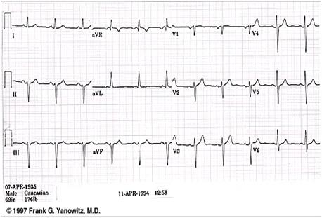 ECG_electrocardiografia_basica/ecg_eje_izquierdo