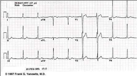 ECG_electrocardiografia_basica/ecg_eje_normal