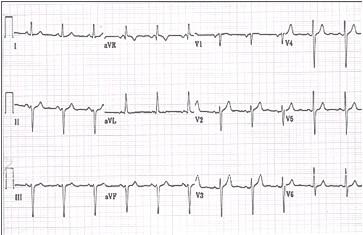 ECG_electrocardiografia_basica/ecg_posicion_horizontal