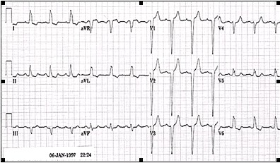ECG_electrocardiografia_basica/ecg_posicion_semihorizontal