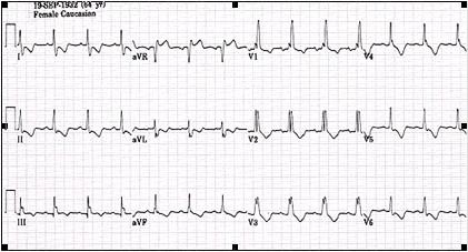 ECG_electrocardiografia_basica/ecg_posicion_semivertical