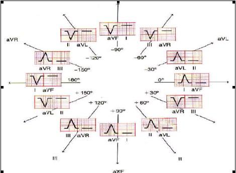 ECG_electrocardiografia_basica/eje_electrico_corazon
