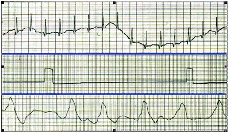 ECG_electrocardiografia_basica/electrocardiograma_calidad_registro