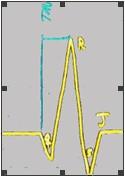 ECG_electrocardiografia_basica/examen_del_qrs
