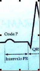 ECG_electrocardiografia_basica/examen_onda_p