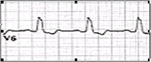 ECG_electrocardiografia_basica/examen_onda_t