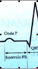 ECG_electrocardiografia_basica/grafico_onda_p