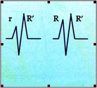 ECG_electrocardiografia_basica/grafico_onda_r