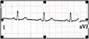 ECG_electrocardiografia_basica/grafico_ritmo_sinusal