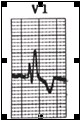 ECG_electrocardiografia_basica/onda_r_v1
