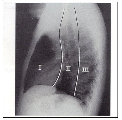 anatomia_mediastino_mediastinica/mediastino_compartimientos_radiografia