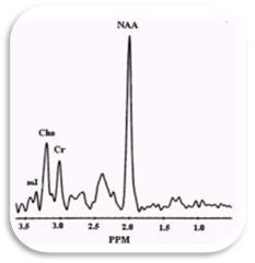 espectroscopia_resonancia_magnetica/espectro_normal_cerebral