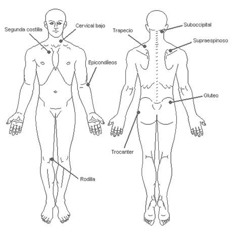 fibromialgia_sindrome_fibromialgico/tender_points_exploracion