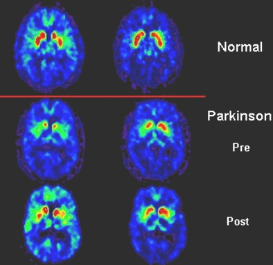 patogenia_enfermedad_parkinson/PET_SCAN_tomografia
