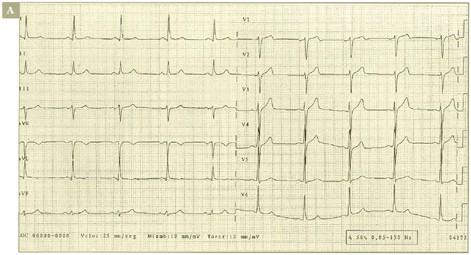 sindrome_coronario_agudo/ALTERACIONES_SUGESTIVAS_PRIMERA
