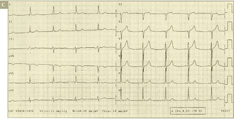 sindrome_coronario_agudo/ALTERACIONES_SUGESTIVA_TERCERA
