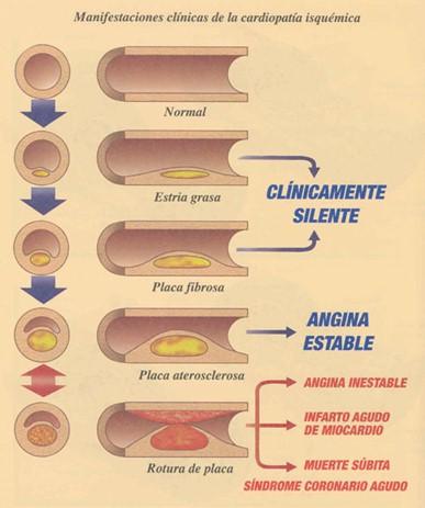 sindrome_coronario_agudo/CLINICA_CARDIOPATIA_ISQUEMICA