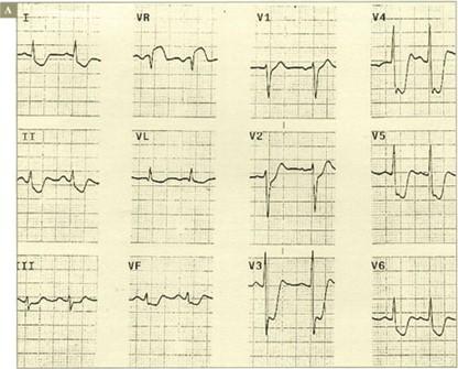 sindrome_coronario_agudo/CRITERIOS_LESION_CRITICA