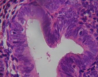 anticoncepcion_sangrado_uterino/diagnostico_hiperplasia_simple