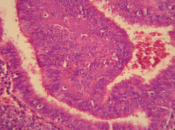 anticoncepcion_sangrado_uterino/hiperplasia_compleja_atipia