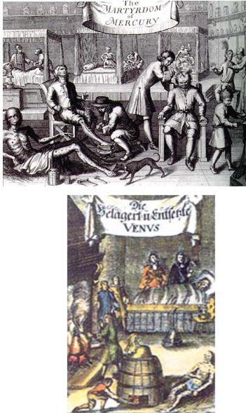 historia_enfermedades_venereas/grabados_mercurio