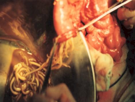 manejo_ascaridiasis_pediatria/evacuacion_ascaris_intestino_ileostomia