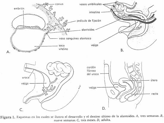 fistula_umbilicovesical_alantoides
