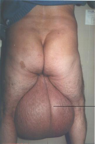 elefantiasis_testicular_escroto_2