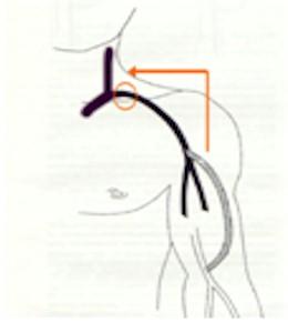 fistulas_arteriovenosas_hemodialisis_11