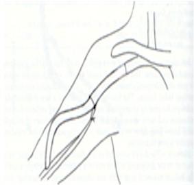 fistulas_arteriovenosas_hemodialisis_5