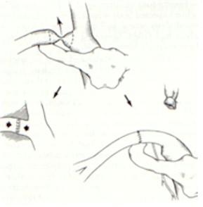 fistulas_arteriovenosas_hemodialisis_9