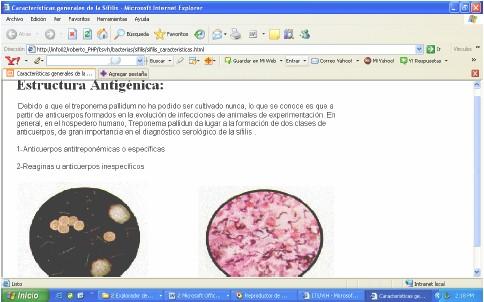 ITS_ETS_CUBA/web_enfermedades_infecciones_transmision_sexual_20