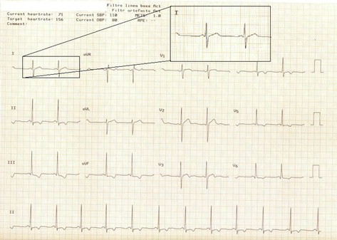 electrocardiograma_ECG_QT/ECG_EKG_intervalo_QT_1
