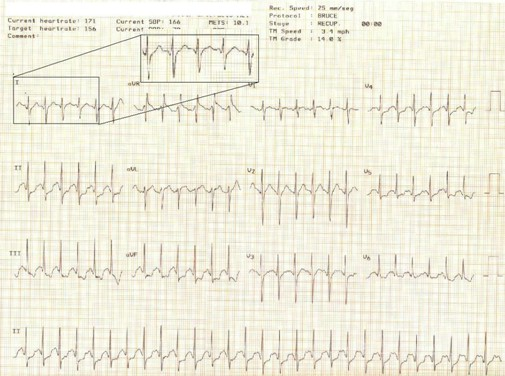electrocardiograma_ECG_QT/ECG_EKG_intervalo_QT_2