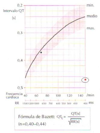 electrocardiograma_ECG_QT/ECG_EKG_intervalo_QT_3