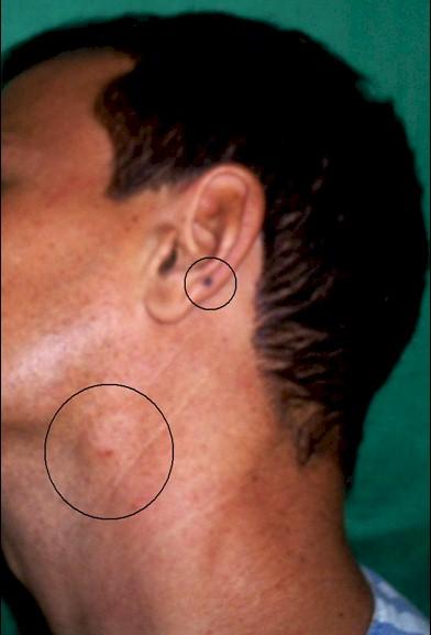 ganglio inflamado cuello: