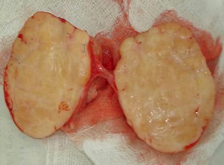 neuroblastoma_laparotomia_extirpacion_reseccion_3