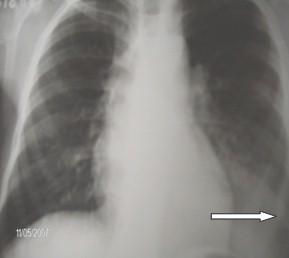 secuestro_pulmonar_intralobar_1