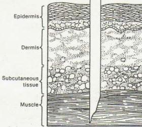 intramuscular