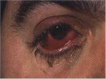 conjuntivitis2