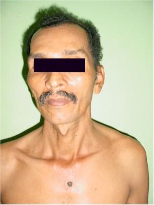 videos enfermedades venereas en el hombre