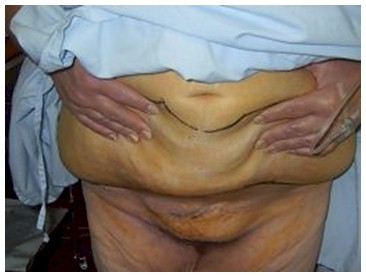 dermolipectomia_cirugia_bariatrica/lipectomia_abdomen_incisiones