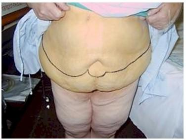 dermolipectomia_cirugia_bariatrica/lipectomia_abdomen_obesidad_morbida_2