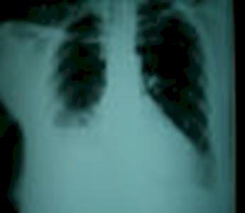 caso_clinico/empiema_radiografia_rx