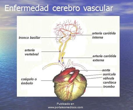enfermedad_cerebrovascular/ACV_anatomia_vascular