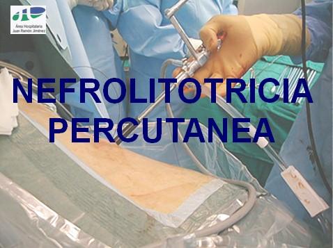 litotricia_percutanea/nefrolitotricia_percutanea_1