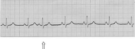manual_cardiologia_pautas/extrasistole_supraventricular_auricular