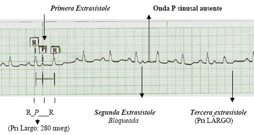 manual_cardiologia_pautas/extrasistole_supraventricular_auricular_2
