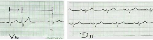 manual_cardiologia_pautas/extrasistole_ventricular_extrasistoles_ventriculares_1